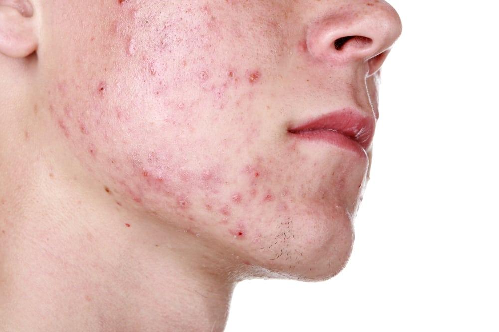 pierde greutatea ajutor acnee